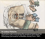 Bladder Stone Operation